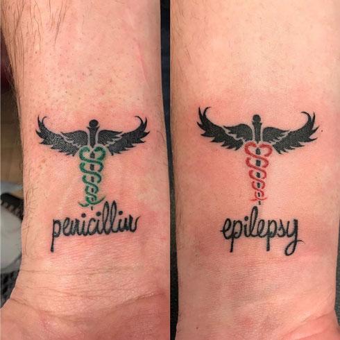epilepsia tatuaje